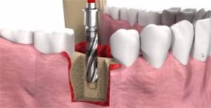 nahrada za zub