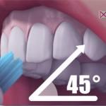 Čo spôsobuje zubný kameň a ako sa mu vyvarovať ?