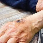 Tipy a triky na nepríjemné kŕčové žily